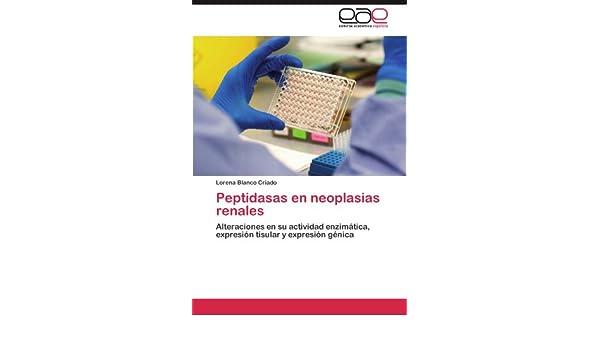 Peptidasas en neoplasias renales: Alteraciones en su ...