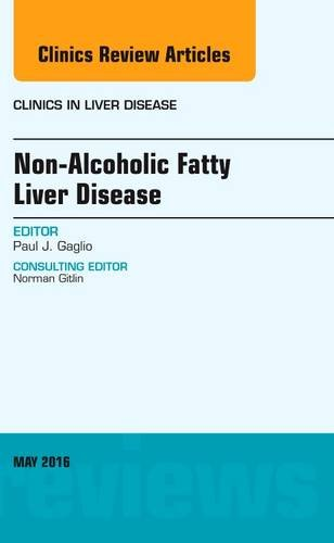 Non-Alcoholic Fatty Liver Disease, An Issue of Clinics in Liver Disease, 1e (The Clinics: Internal Medicine)