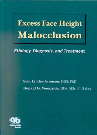 Excess Face Height Malocclusion: Etiology, Diagnosis, and Treatment