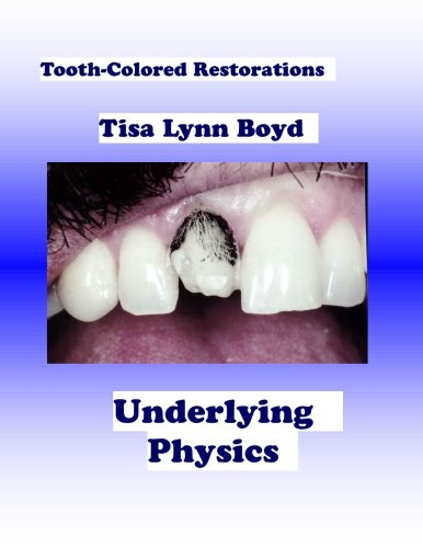 Tooth-Colored Restorations: Underlying Physics