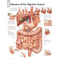 Diseases of Digestive System chart: Laminated Wall Chart