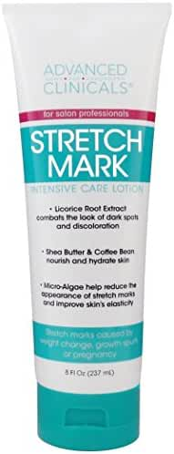 Advanced Clinicals Stretch Mark Lotion. Moisturizing Cream for Scars, Extreme Weight Loss, Pregnancy. 8oz Tube.