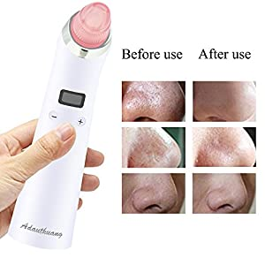 Blackhead Remover, Adauthuang Mini Facial Pore Blackhead Acne Removal, Powerful Comedone Extractor, Healthy Pore Vacuum Extractor, USB Rechargeable Comedo Suction Tool, 1 Set of 4 Tips (White)