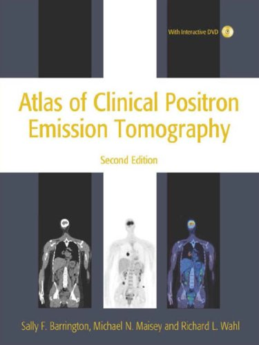 Download Atlas of Clinical Positron Emission Tomography 2nd Edition Pdf