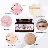 Scar Removal Cream, Scar Cream, Stretch Marks