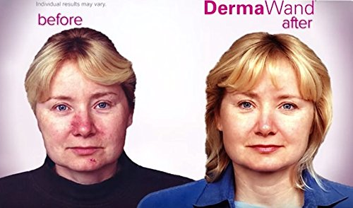 Amazon Dermawand Retail Kit With Preface Look Years Younger
