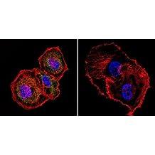 Mesothelioma Antibody (ME1), 25ug