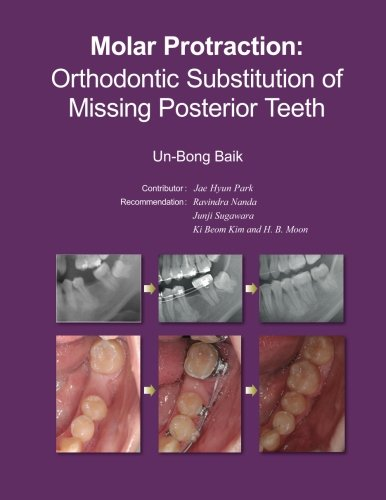 Molar Protraction   Orthodontic Substitution Of Missing Posterior Teeth