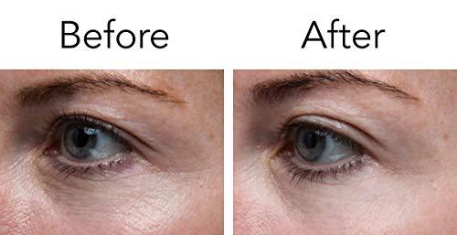 41Teiln7KNL - Pronexa Hairgenics Lavish Eyes: Anti-Aging UnderEye Gel Serum to Reduce the Appearance of Dark Circles, Puffiness, Bags, Wrinkles, Fine Lines & Crows Feet Around Eyes. 1.0 FL OZ.