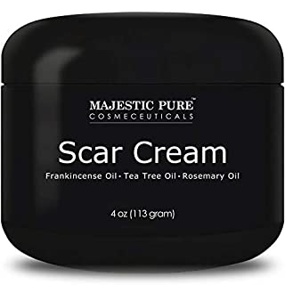 Majestic Pure Scar Cream for Face & Body - w/Pure Tea Tree Frankincense & Rosemary Oils, Soothes and Reduces the Appearances of Old and New Scars, Acne Scars, Stretch Mark, and Surgery Scars, 4 oz
