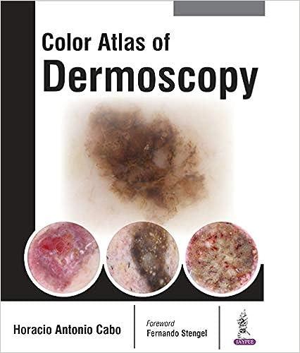 Color Atlas of Dermoscopy - Original PDF