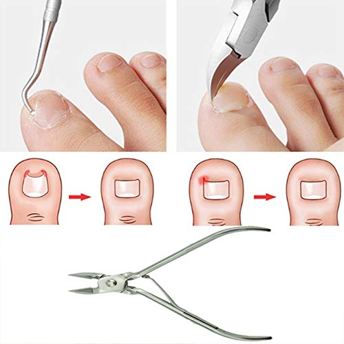 (2Pcs/Set Ingrown Toe Nail Correction Nippers Clipper Cutters Dead Skin Dirt Remo)