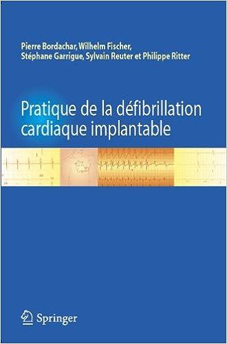 Télécharger en ligne Pratique de la défibrillation cardiaque implantable pdf ebook