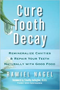 Cure Tooth Decay: Remineralize Cavities and Repair Your Teeth Naturally with Good Food [Second Edition] of Nagel, Ramiel 2nd (second) Edition on 01 November 2010