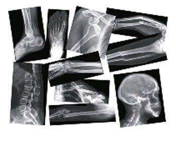 BROKEN BONES X-RAYS by Roylco ()
