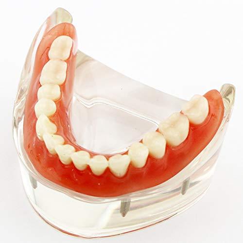 Dental Teaching Model Overdenture Inferior with 4 Implants Demo #6003