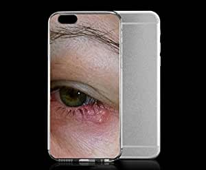 iPhone 6 cover case HerpasSimplax FileHerpasSimplax Lid Jpg Wikimedia Commons