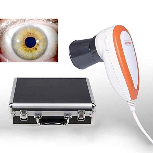 Lolicute 5.0 MP USB Iriscope Iris Analyzer Iridology Camera with Pro Iris ()