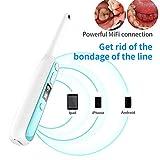 Dayangiii Endoscopio Dental inalámbrico WiFi, 8 Luces led Ajustables Cámara intraoral HD Video para iOS Android Dientes endoscopio de inspección