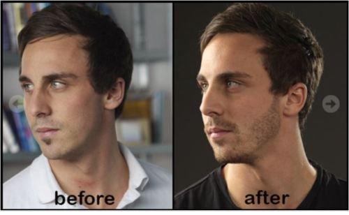 Image Is Loading Black Phom Hair Growth Cream Grow Beard