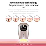 Laser Hair Removal for Women and Men, IPL