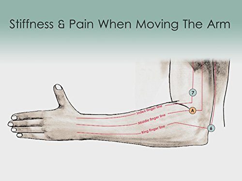 Treatment Routine 22 - Stiffness with Pain when Bending and Straightening the Arm
