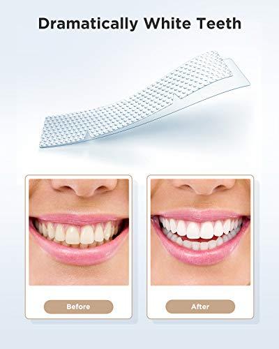 Fairywill Teeth Whitening Strips for Sensitive Teeth - Reduced Sensitivity Whitener strips, Gentle and Safe for Enamel, 3D Whitestrips Pack of 28 White Strips