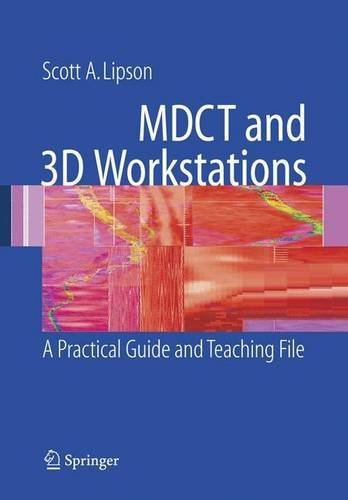 MDCT and 3D Workstations: A Practical How-To Guide and Teaching File by Scott A. Lipson (2005-12-20)
