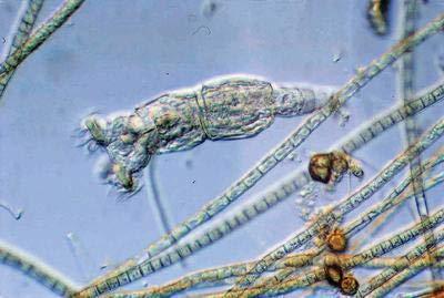 470176-592EA - Description : Freshwater Rotifers (Small Culture) - Ward's Live Freshwater Rotifer Culture - - Water Vwr