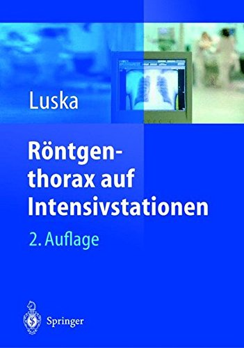 Röntgenthorax auf Intensivstationen