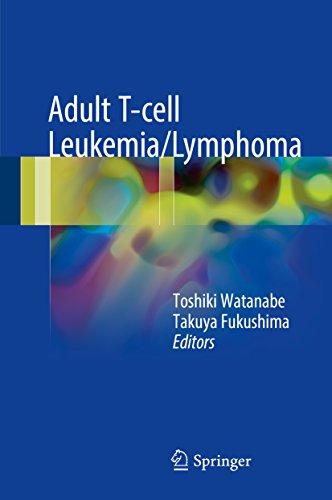 adult-t-cell-leukemia-lymphoma