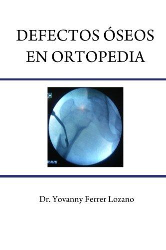 Defectos oseos en Ortopedia (Spanish Edition) [Yovanny Ferrer Lozano] (Tapa Blanda)