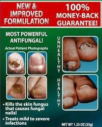 Dr. Blaines Tineacide Antifungal Cream - 1.25 oz, Pack of 5