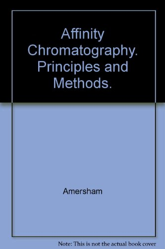 Affinity Chromatography. Principles and Methods.