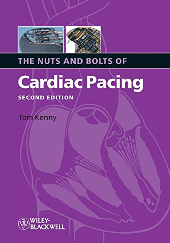 The Nuts and Bolts of Cardiac Pacing 2nd Edition by Kenny, Tom (2008) Paperback