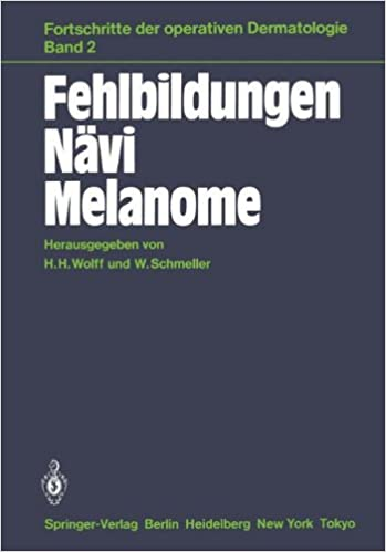 Fehlbildungen Nävi Melanome (Fortschritte der operativen und onkologischen Dermatologie)
