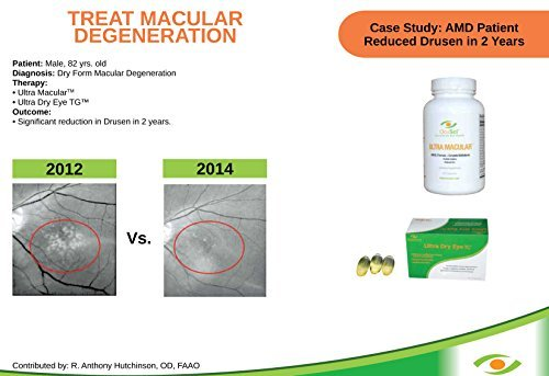 Ultra Macular - Ophthalmologist Recommended AREDS 2 Formula, Proven to Slow AMD: Lutein, Zeaxanthin, Bilberry + 100% RDA of 16 Vitamins by Ultra Macular (Image #4)