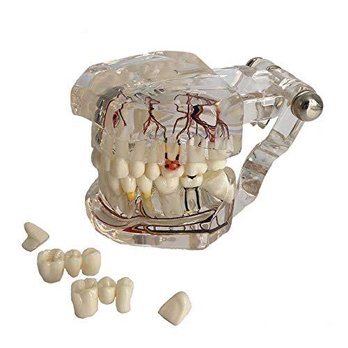 [해외]교육 투명 모델 치아 병리학 모델-표시 치과 충 치임 플 란 트 치과 분리형 모델 / Teaching Transparent Model Teeth Pathology Model - Showing Dental CariesImplant Dental Detachable Model