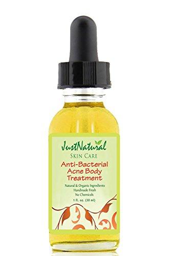 anti-bacterial-body-acne-treatment