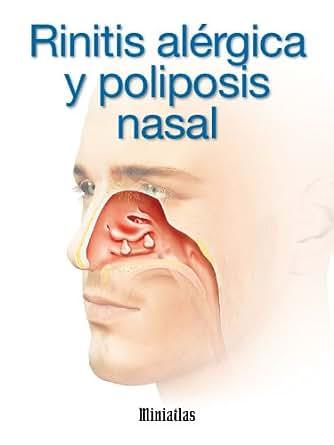 Rinitis Alérgica y Poliposis Nasal eBook: Dr. Luis Raúl