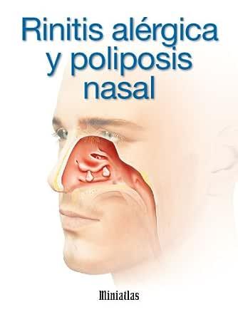 Rinitis Alérgica y Poliposis Nasal eBook: Lépori, Dr. Luis