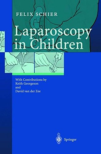 Laparoscopy in Children