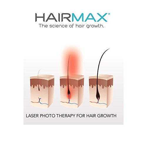 HairMax_Scientific_Data_Proves_The_Lasercomb_Works