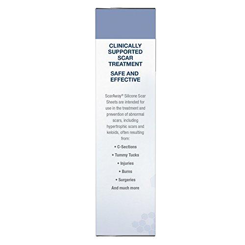 Best Neosporin Anti Itch Cream Eczema Essentials August