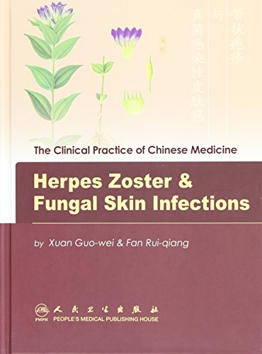 Herpes Zoster & Fungal Skin Infections (Clinical Practice of Chinese Medicine) (English and Chinese Edition)