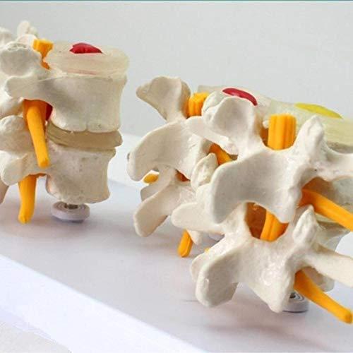 Blood Sky 4Pcs//Set Anatomical Human Lumbar Vertebrae Degenerative Medical Spine Lumbar Disc Herniation Model