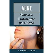 Acne: Causas e Tratamento para Acne (Portuguese Edition)