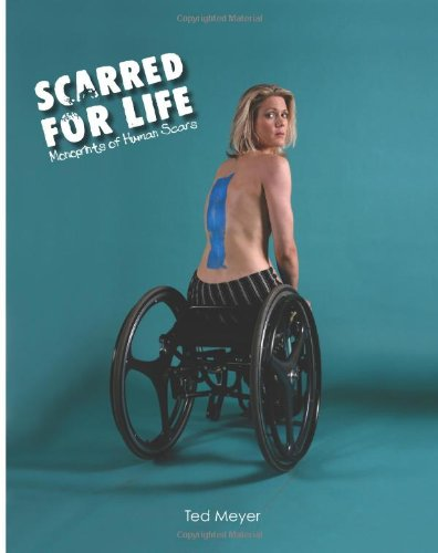 Scarred For Life: Mono-prints And Documentation Of Human Scars (Volume 1)
