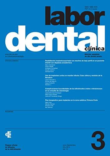 Descargar Libro Labor Dental Clínica Nº 3-2014 Varios Autores