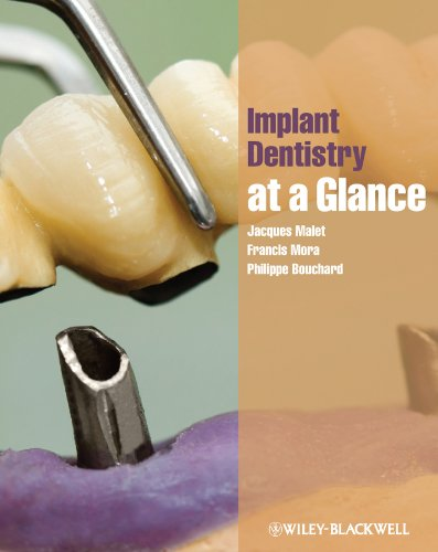 Download Implant Dentistry at a Glance Pdf